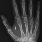 RFID NFC Implantation dans l humain